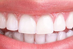 After teeth whitening and bleaching