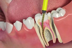 Root canal treatment / specialist in Coimbatore