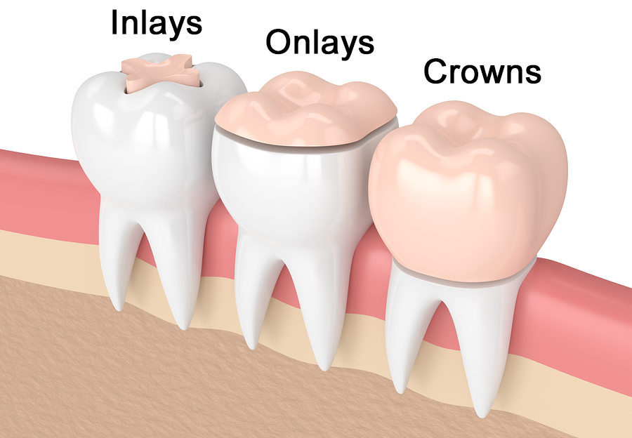 Do you aware about Inlay and Onlay treatment?