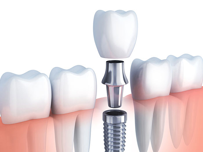 Dental Implants Restorative process
