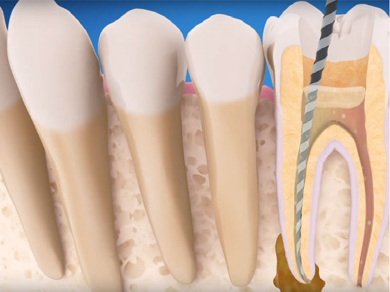Endodontic Therapy Complications and Retreatment