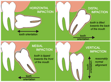 Why wisdom Teeth is not always wise: