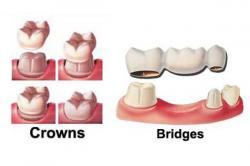 Ceramic Crown / Bridges